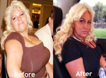 Beth Chapman weight loss